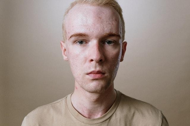 Le froid pour lutter contre l'acné